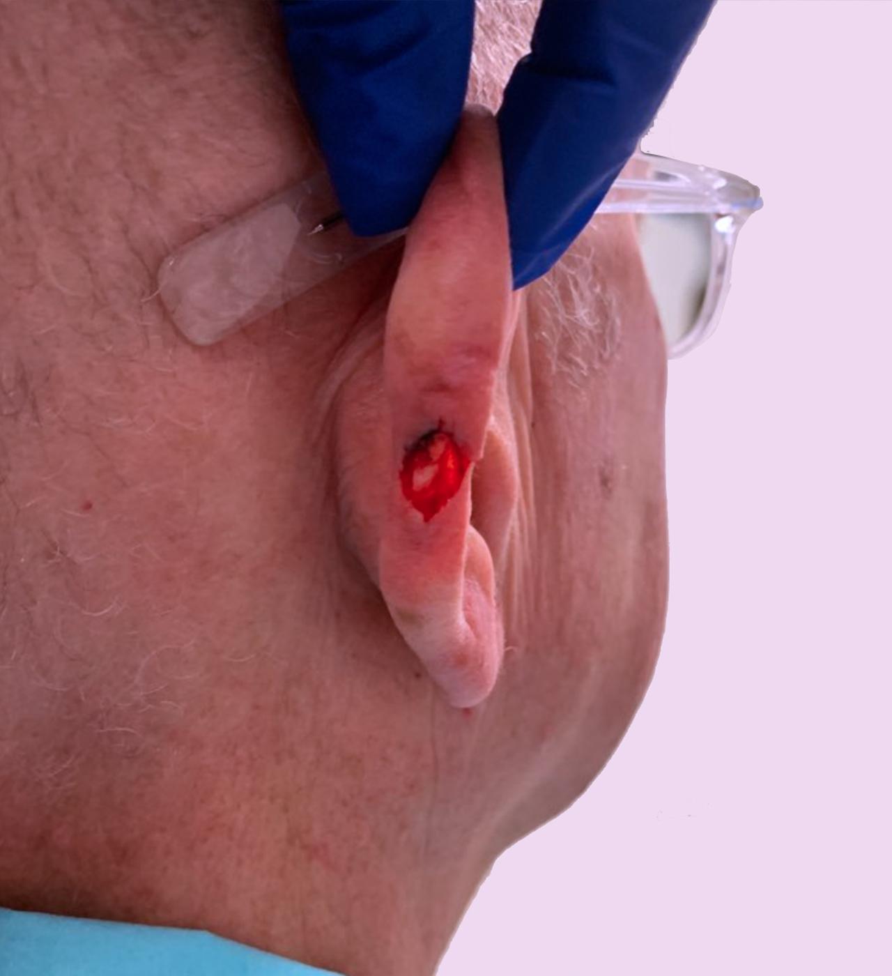 Mohs Surgery Ear 8