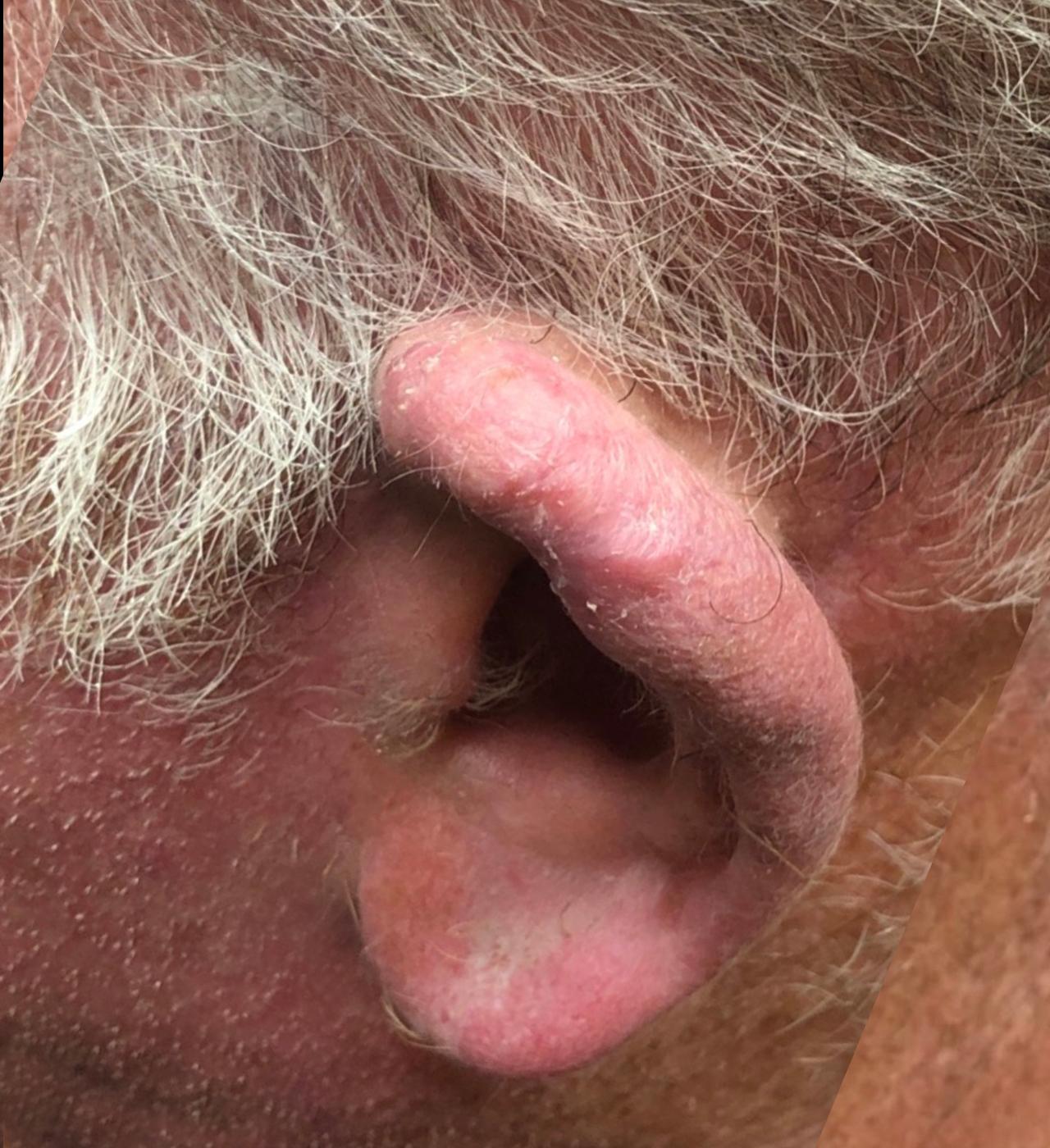 Mohs Surgery Ear 9