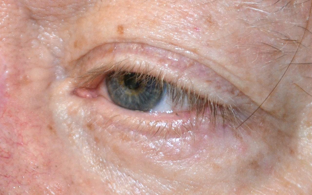 Mohs Surgery Eye