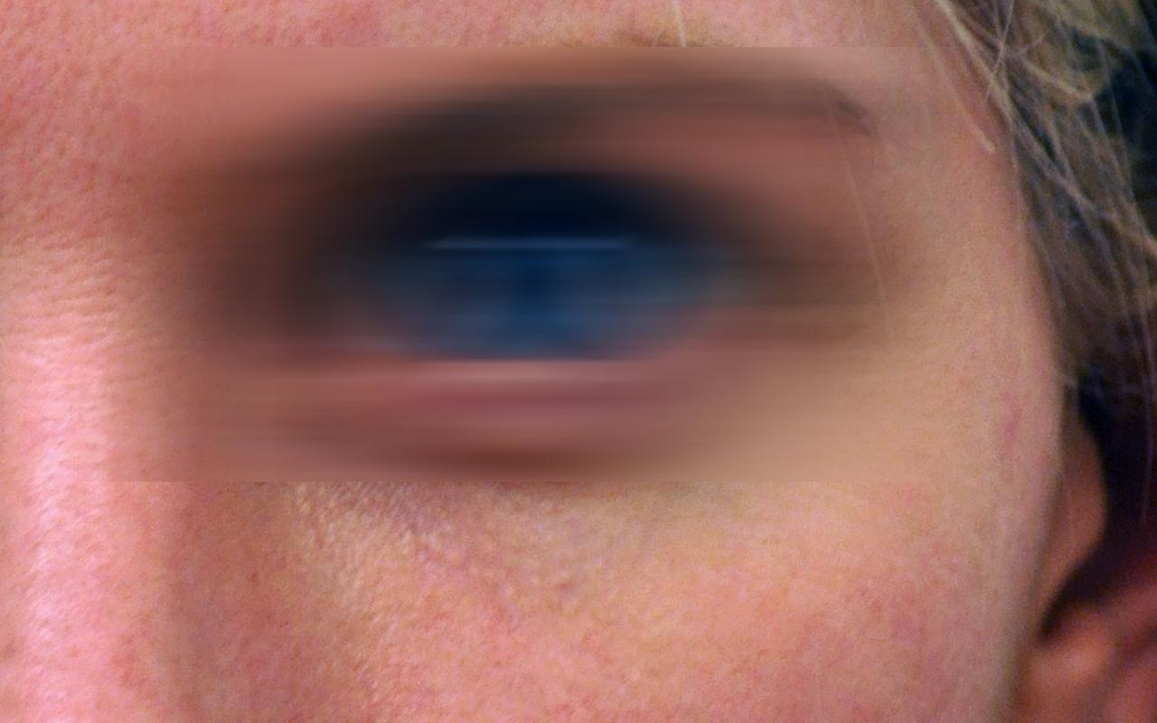 Mohs Surgery Eye 5
