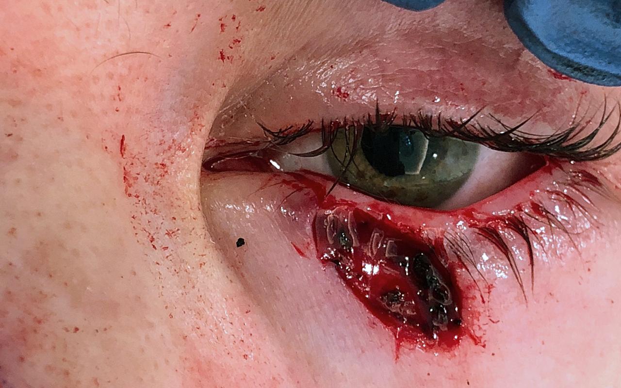 Mohs Surgery Eye 7