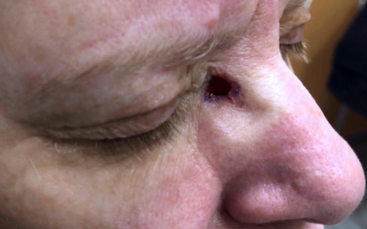 Mohs Surgery Eye 8