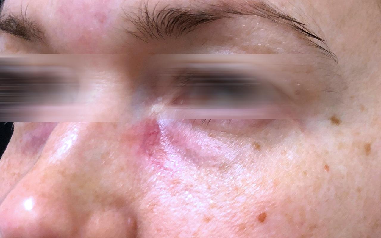 Mohs Surgery Eye 10