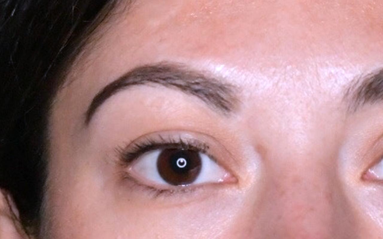 Mohs Surgery Eye 11