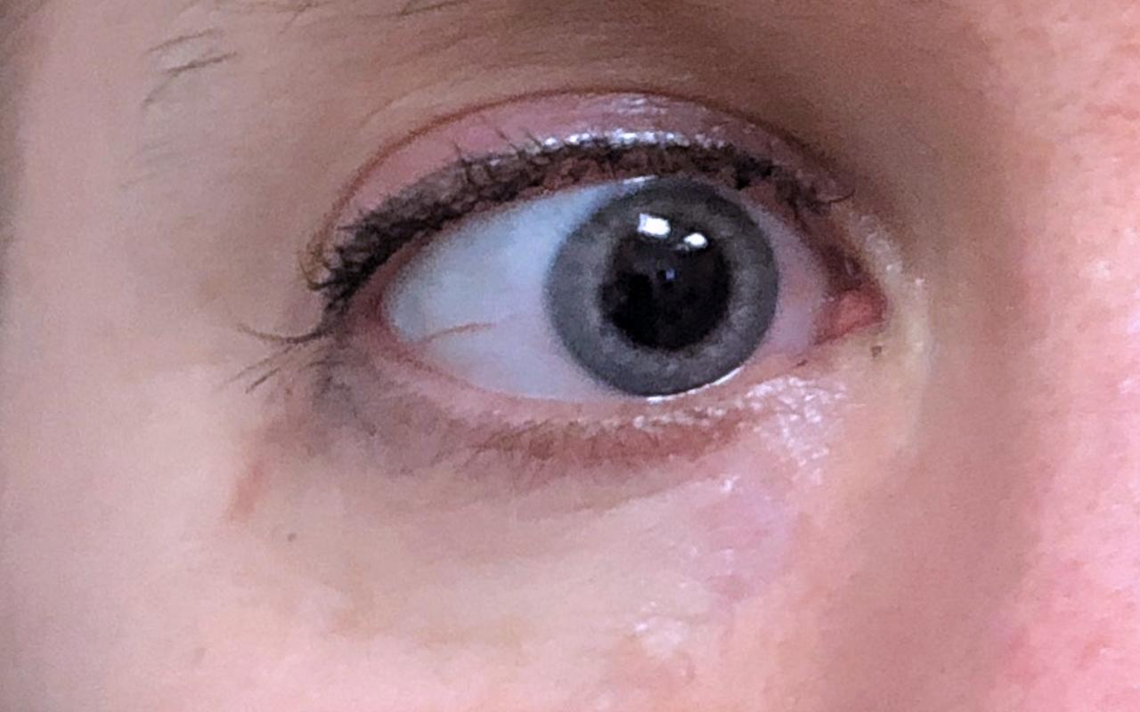 Mohs Surgery Eye 12