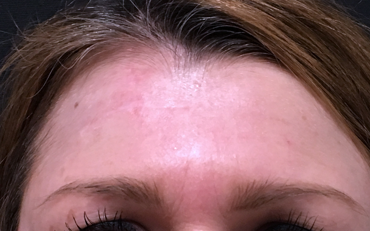 Mohs Surgery Forehead 4