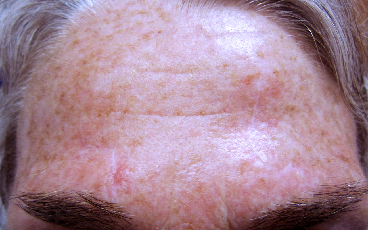 Mohs Surgery Forehead 5