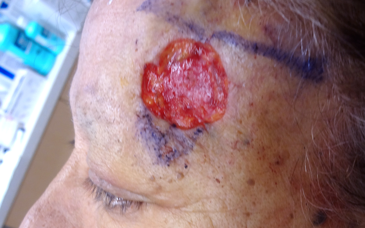 Mohs Surgery Forehead 6