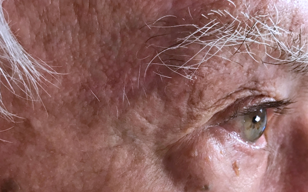 Mohs Surgery Forehead 7