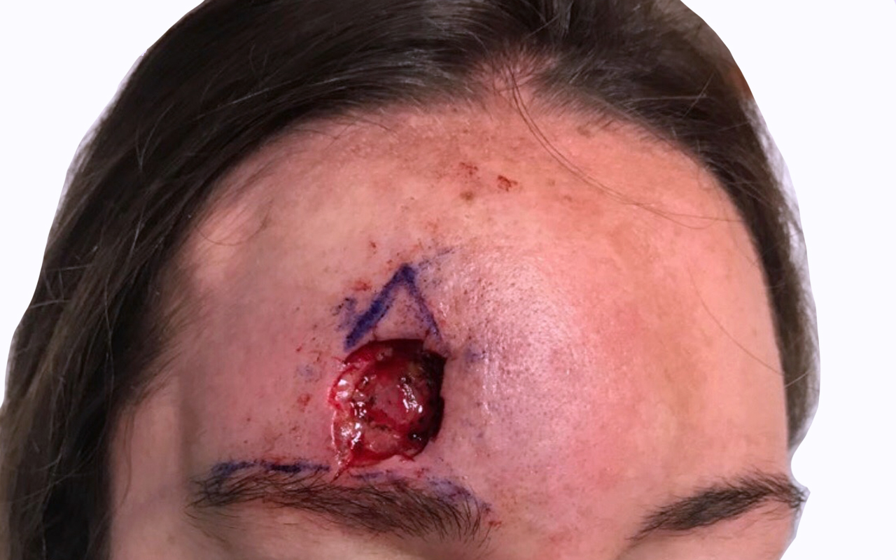 Mohs Surgery Forehead 8