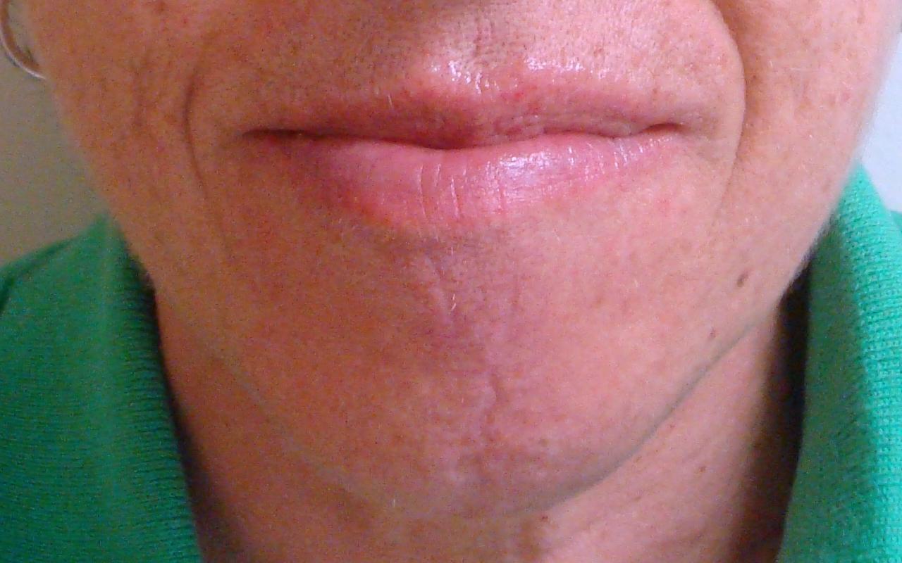 Mohs Surgery Lip & Chin