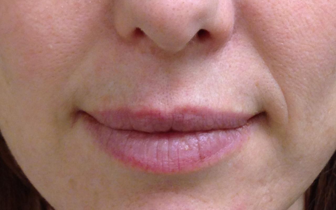Mohs Surgery Lip & Chin 2