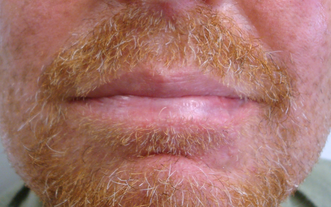 Mohs Surgery Lip & Chin 4