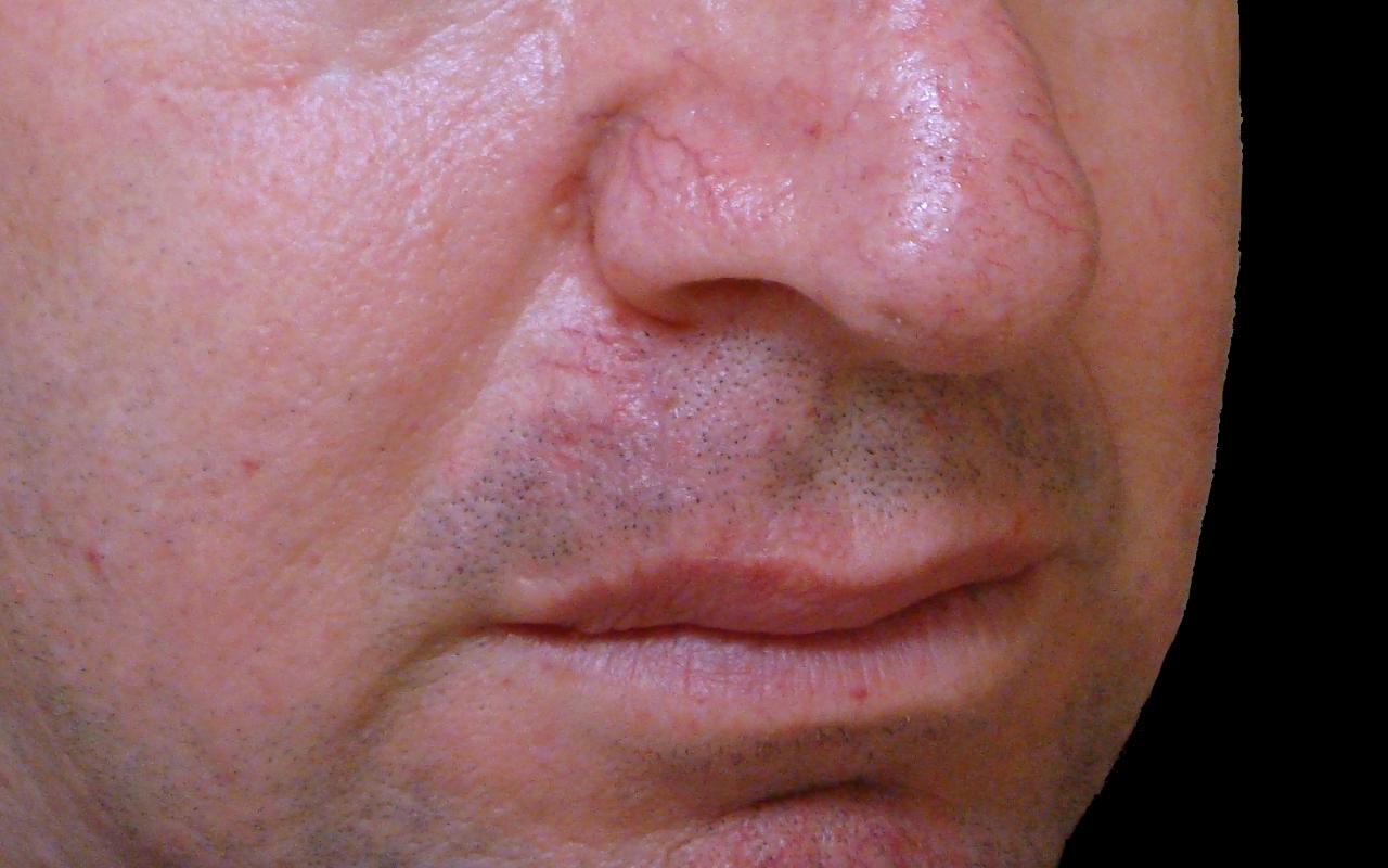 Mohs Surgery Lip & Chin 5