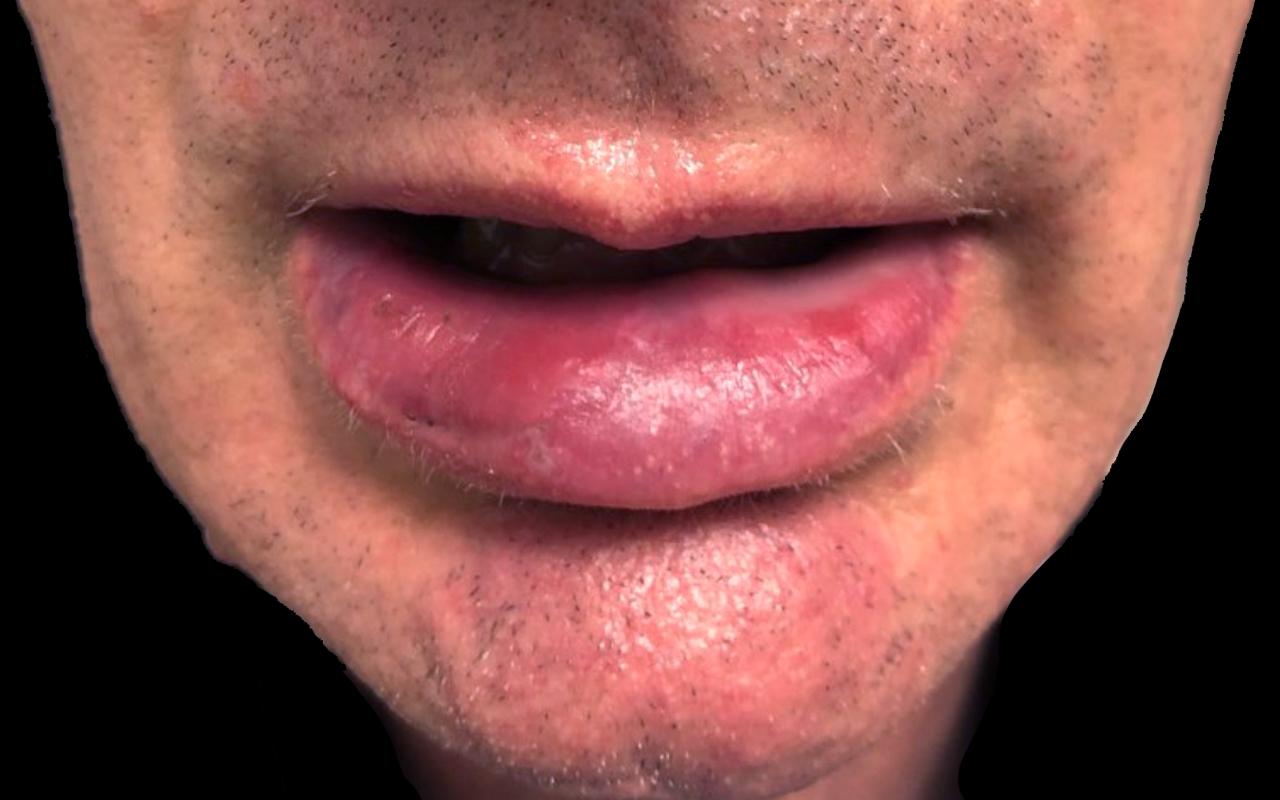 Mohs Surgery Lip & Chin 6