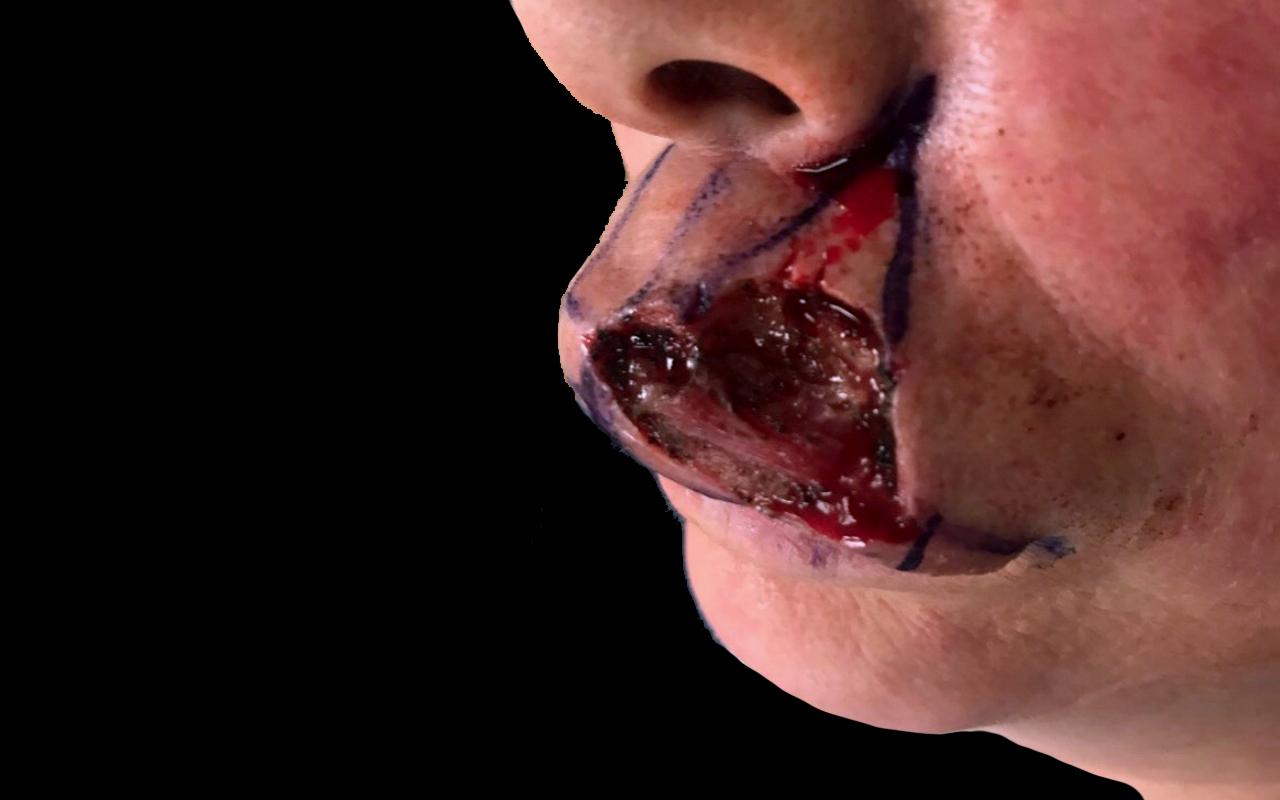 Mohs Surgery Lip & Chin 7