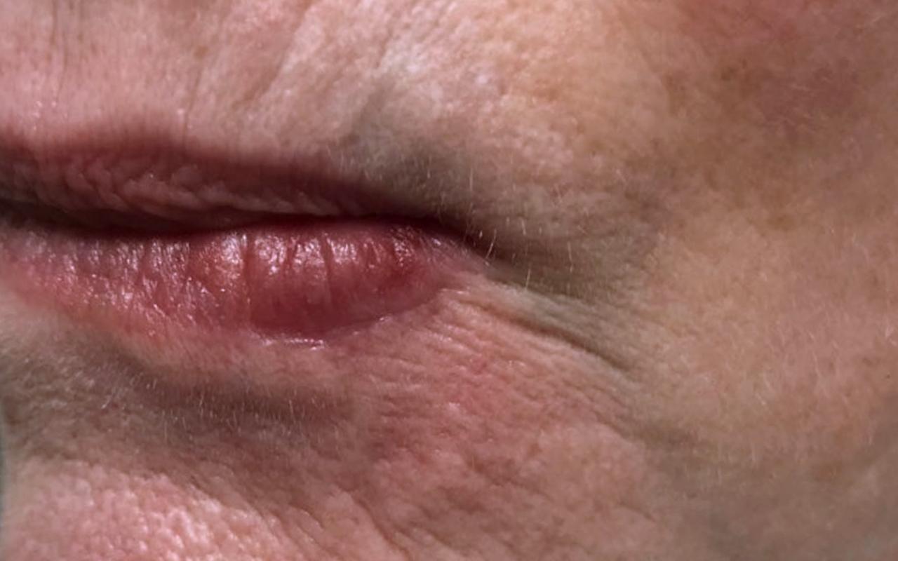 Mohs Surgery Lip & Chin 8