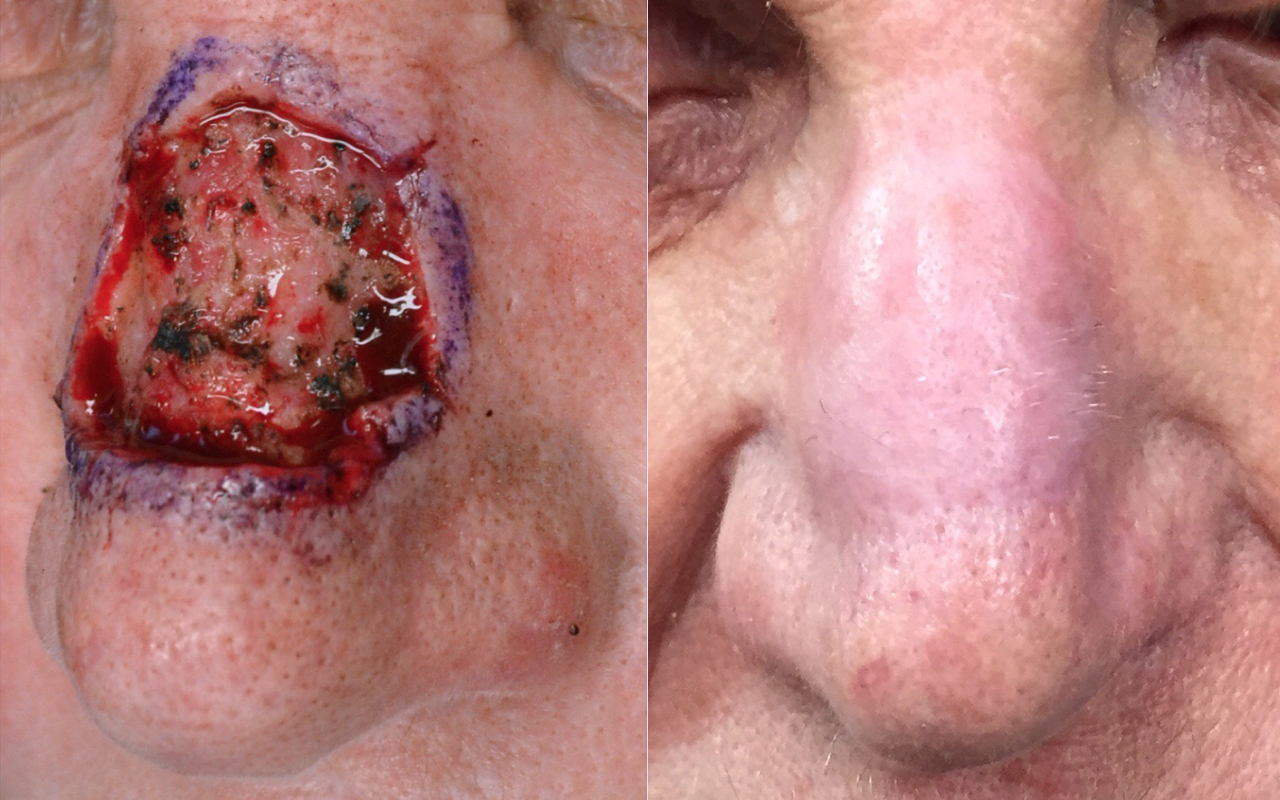 Mohs Surgery Nose 3
