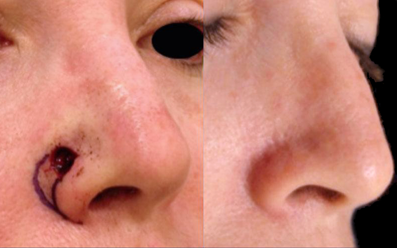 Mohs Surgery Nose 4