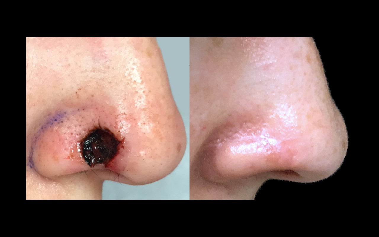Mohs Surgery Nose 5