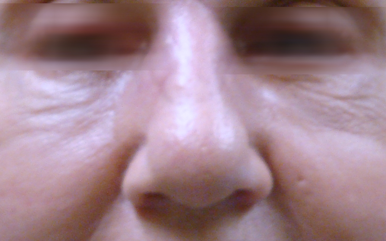 Mohs Surgery Nose 6