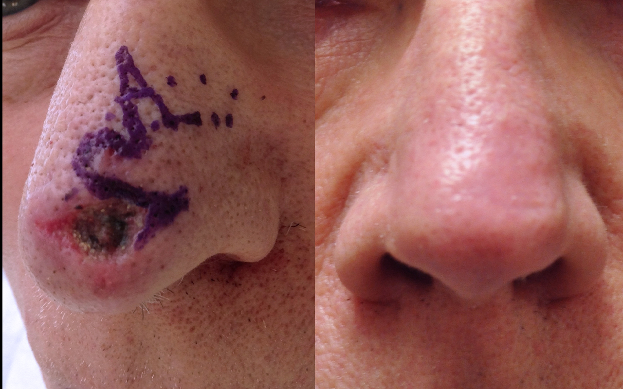 Mohs Surgery Nose 7