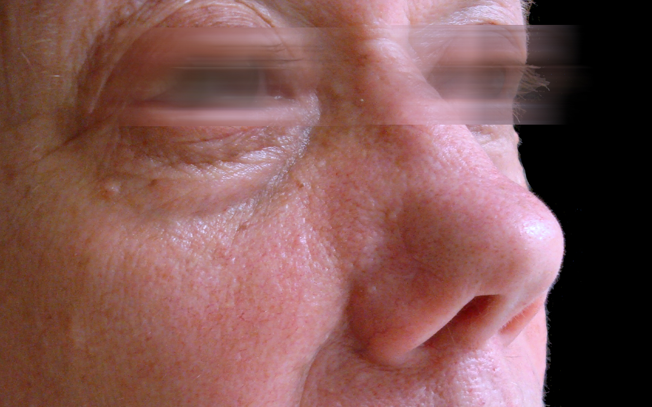 Mohs Surgery Nose 9