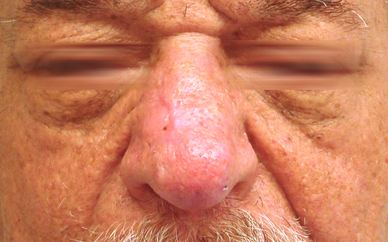Mohs Surgery Nose 13