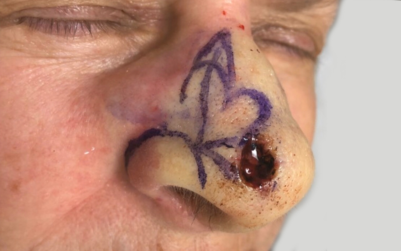 Mohs Surgery Nose 14