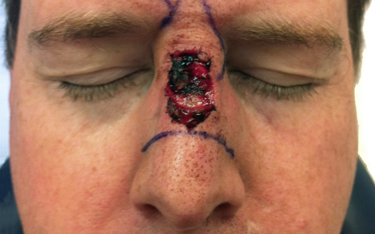 Mohs Surgery Nose 15