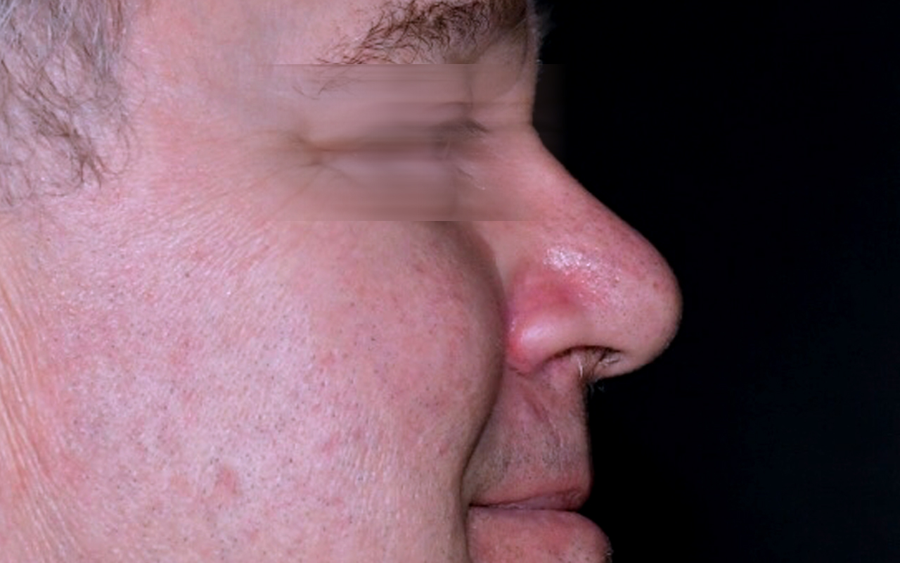 Mohs Surgery Nose 17