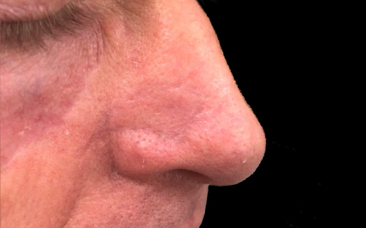 Mohs Surgery Nose 18