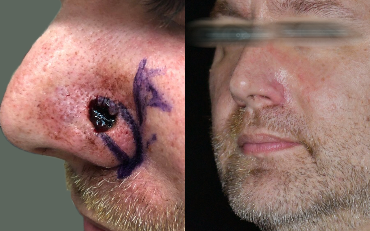 Mohs Surgery Nose 19
