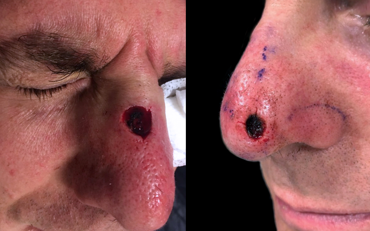 Mohs Surgery Nose 20