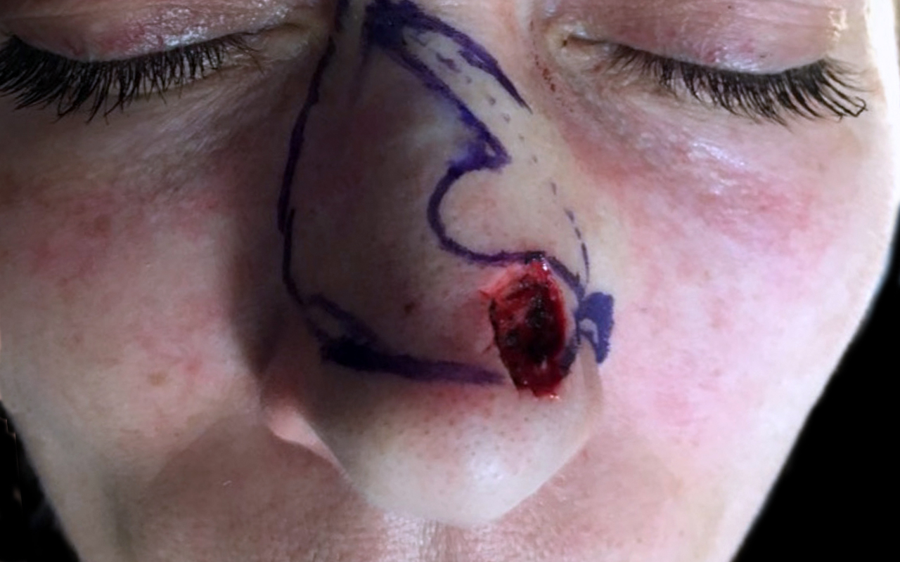 Mohs Surgery Nose 22