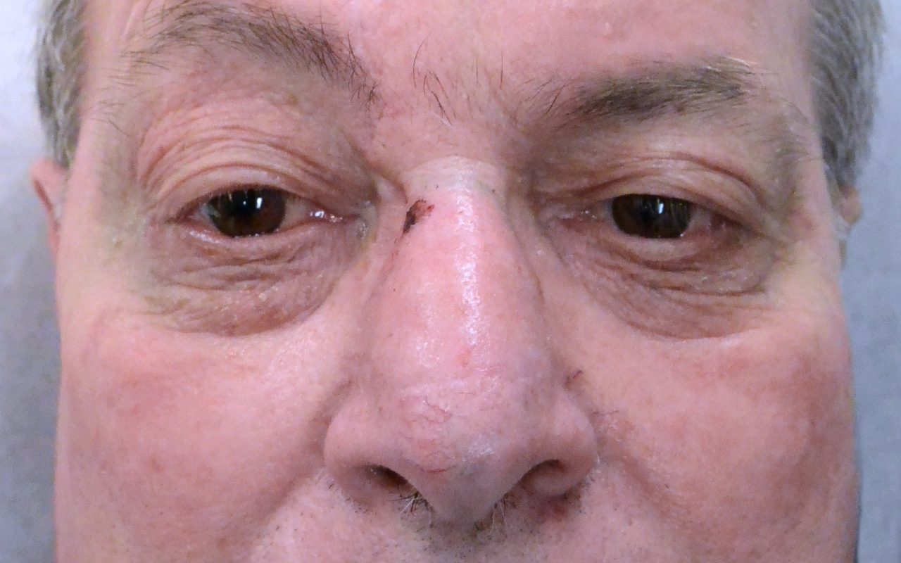 Mohs Surgery Nose 24