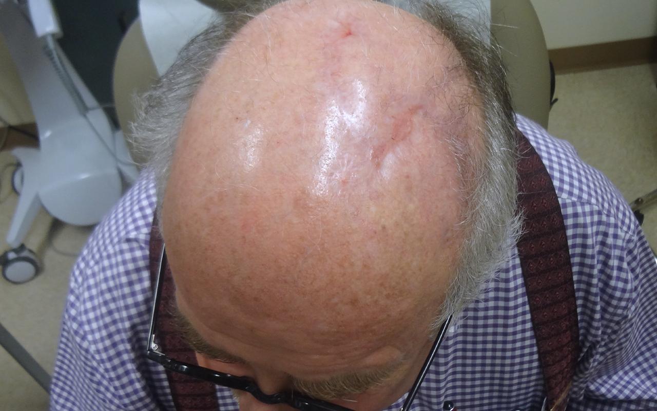 Mohs Surgery Scalp