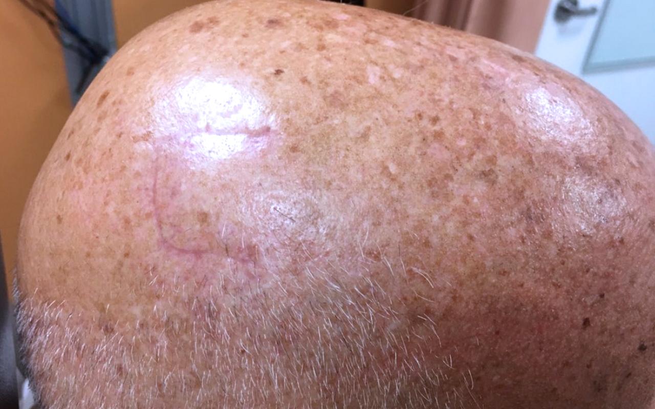 Mohs Surgery Scalp 3