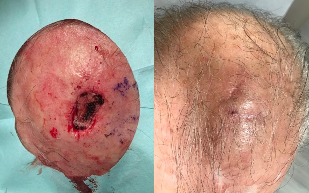 Mohs Surgery Scalp 4