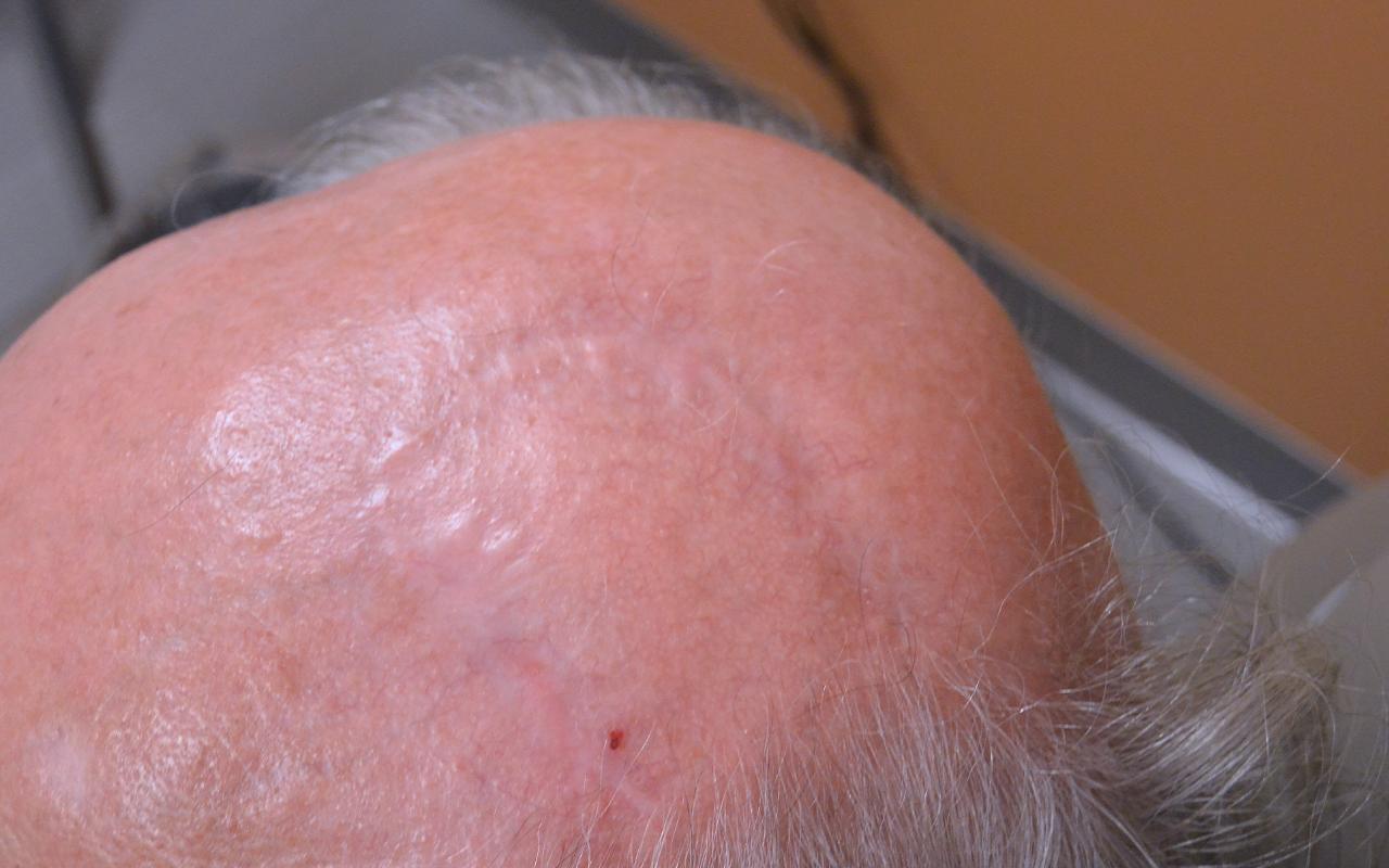 Mohs Surgery Scalp 5