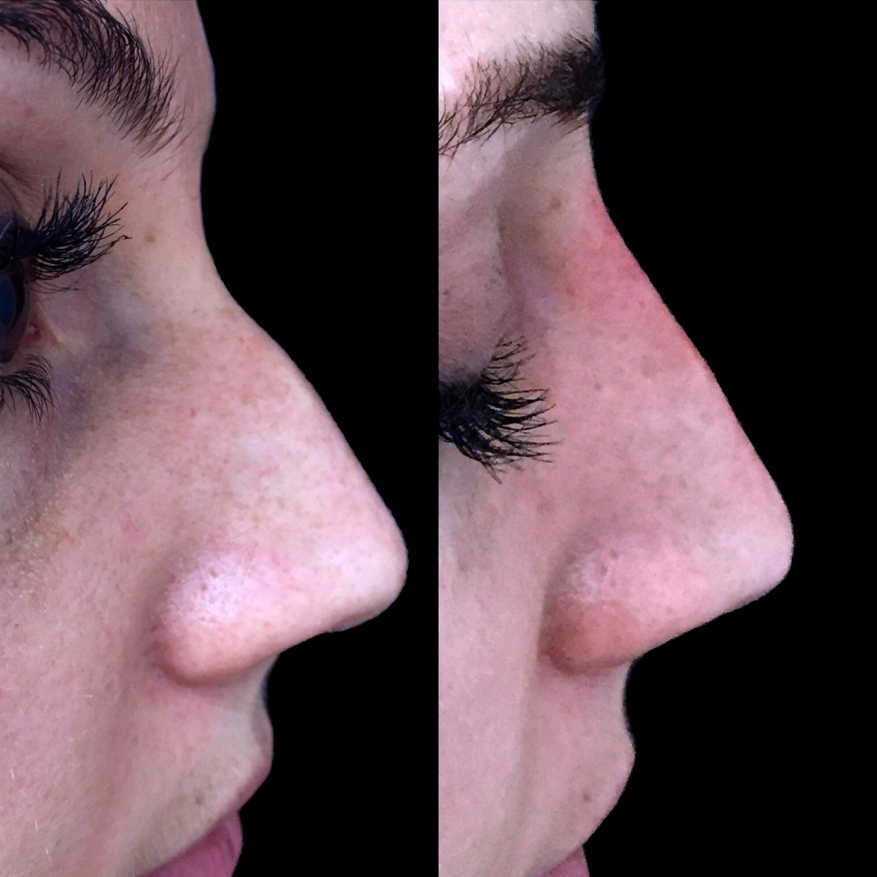 Non-Surgical Nose Reshaping 2