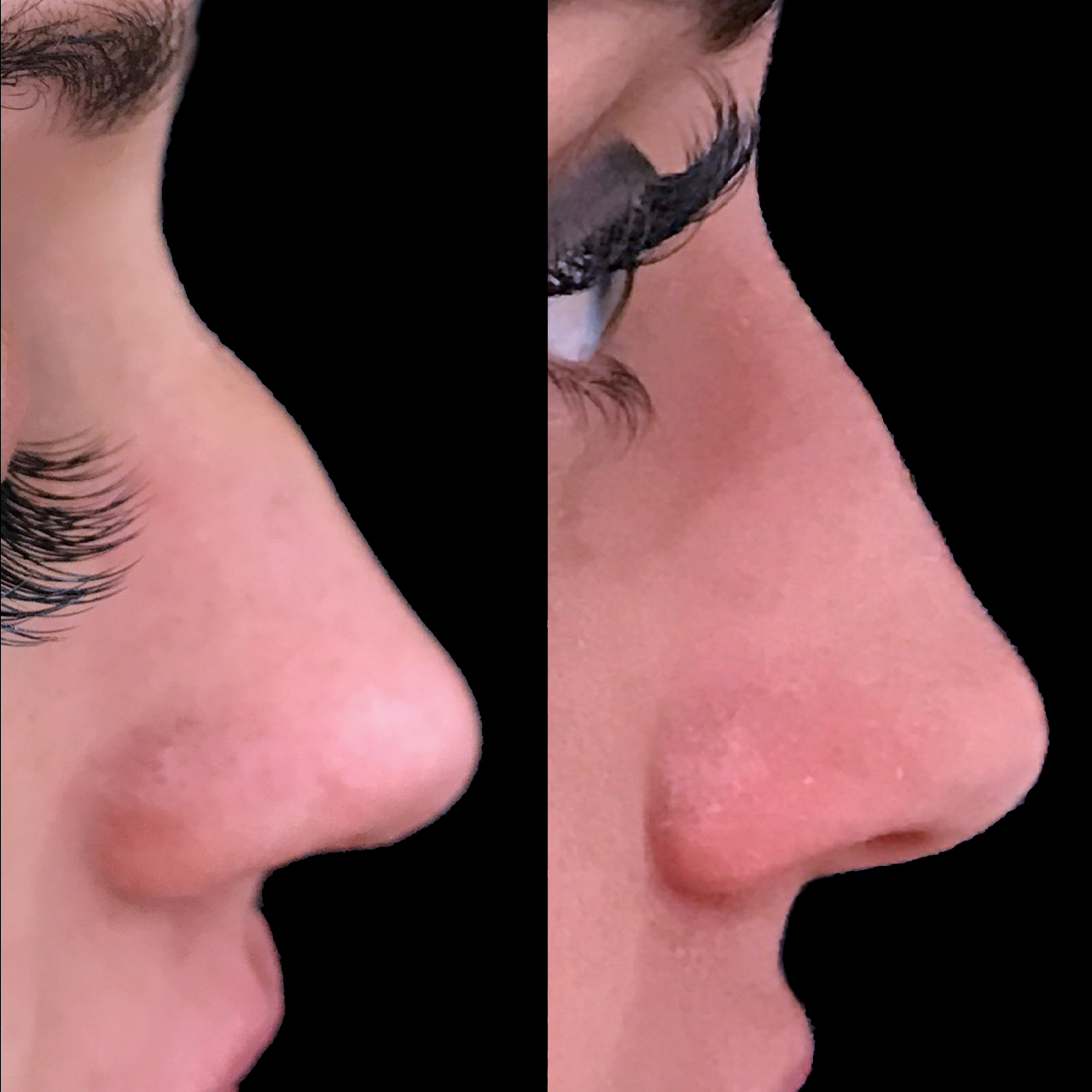 Non-Surgical Nose Reshaping 3