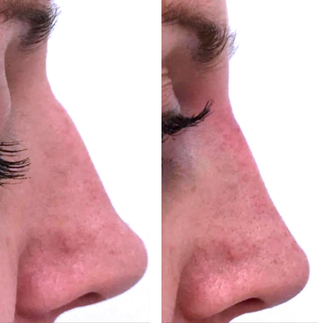 Non-Surgical Nose Reshaping 4
