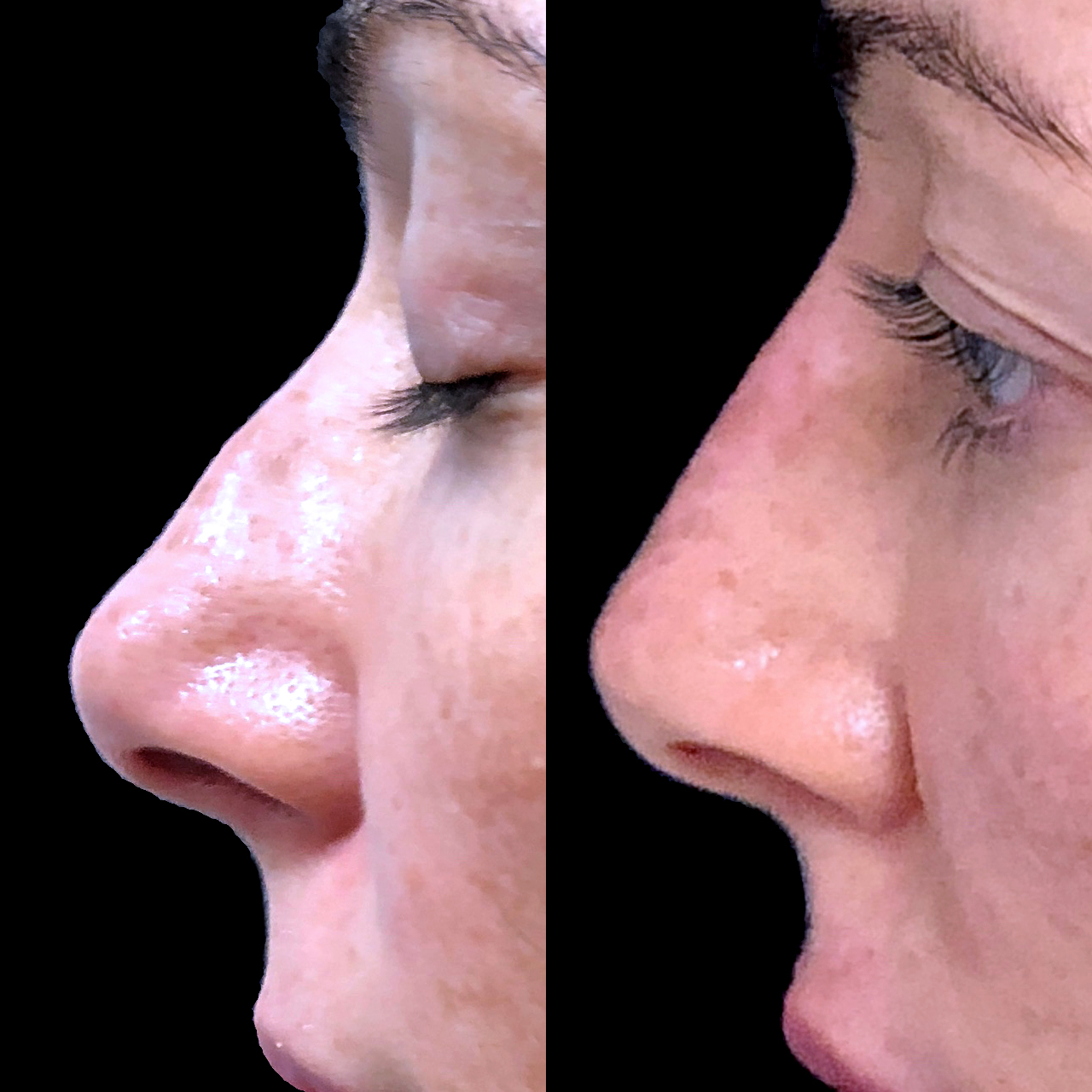 Non-Surgical Nose Reshaping 5