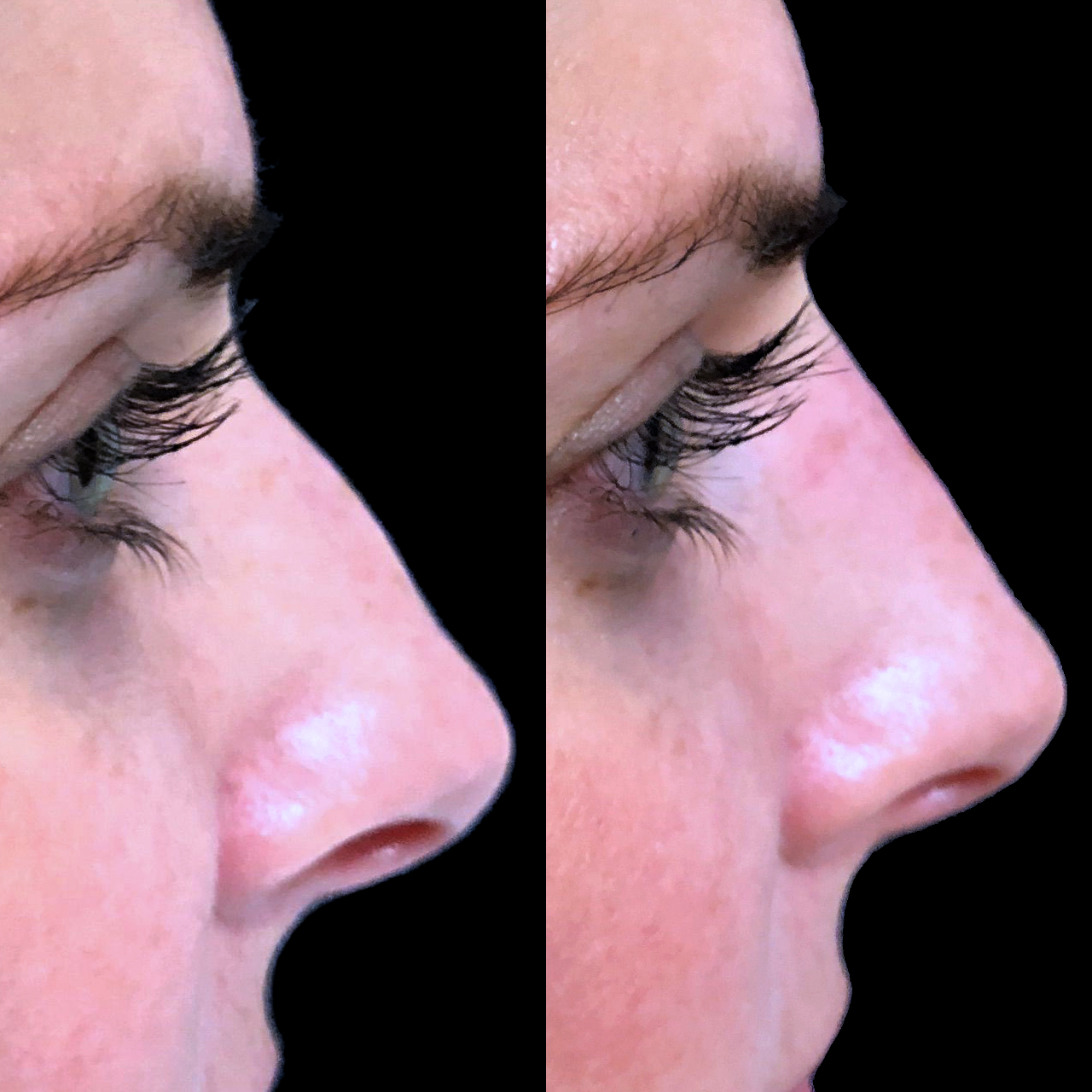 Non-Surgical Nose Reshaping 6