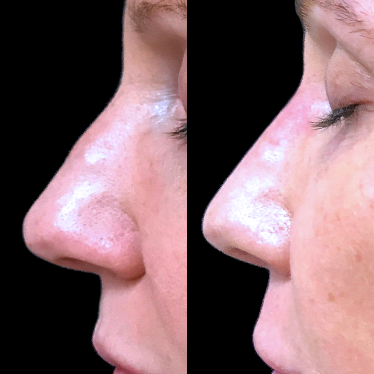 Non-Surgical Nose Reshaping 7