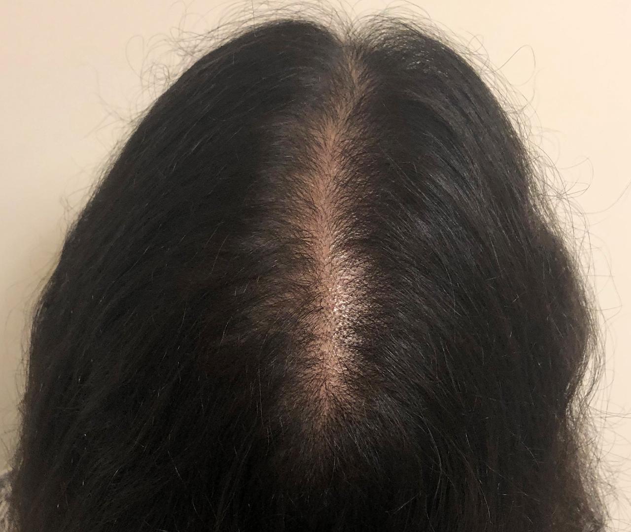 Hair Restoration 5