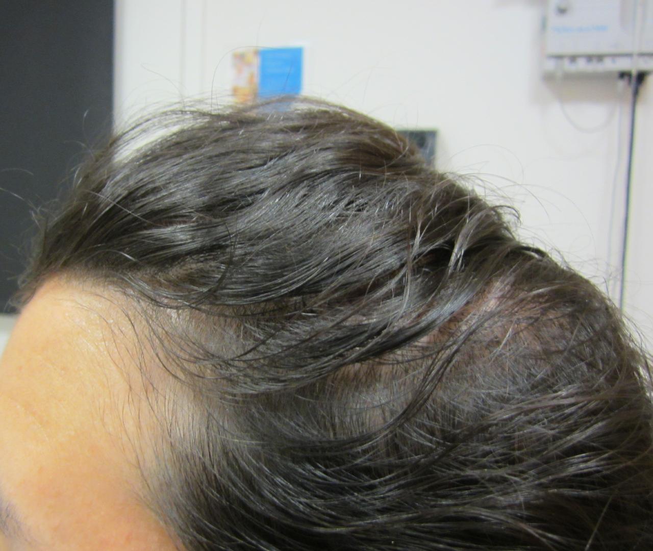 Hair Restoration 6