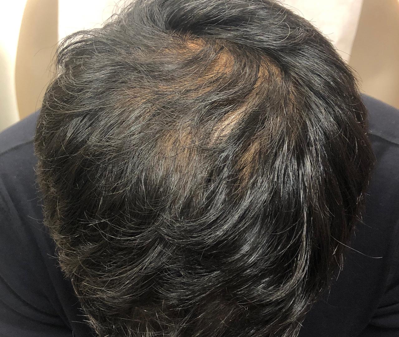 Hair Restoration 7