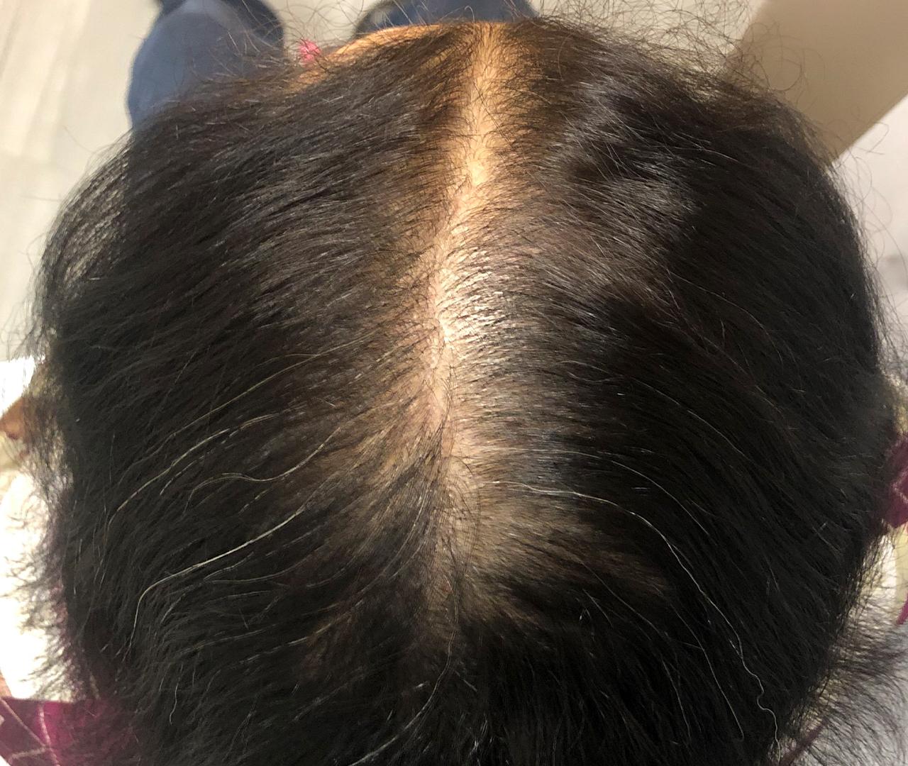 Hair Restoration 8